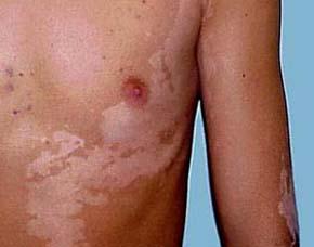 皮肤白斑病有什么症状图片