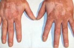 常州治皮肤病的地方哪家好 白癜风不治疗会怎样呢