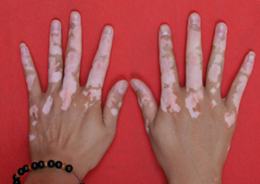 指甲上有白点的图片